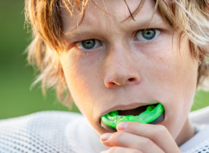 5 Benefits of a Professionally Fitted Mouthguard
