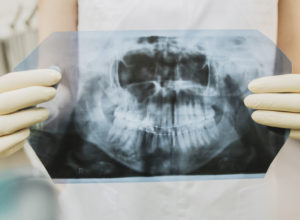Wisdom Teeth: What You Need to Know